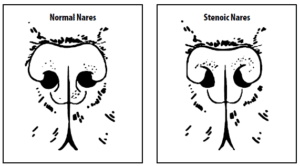 Brachycephalic-Syndrome-2-1-300x166 Zespół brachycefaliczny - co to jest?